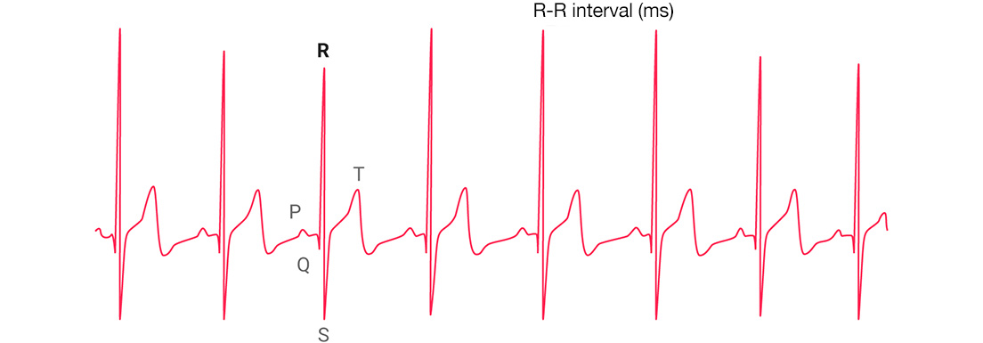 A graph showing a heart rate variability stress test.